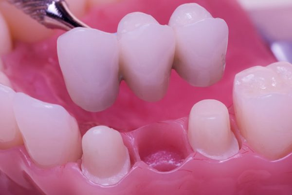 comestic-dentistry-bridges