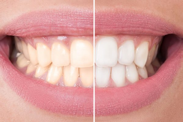comestic-dentistry-teeth-whitening