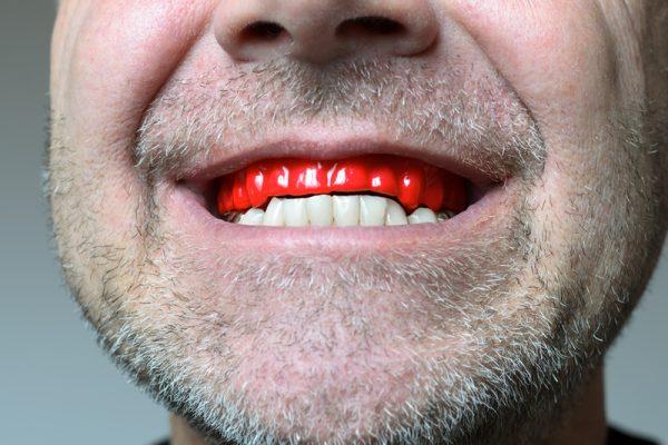 bruxism-clenching-teeth-night-grinding