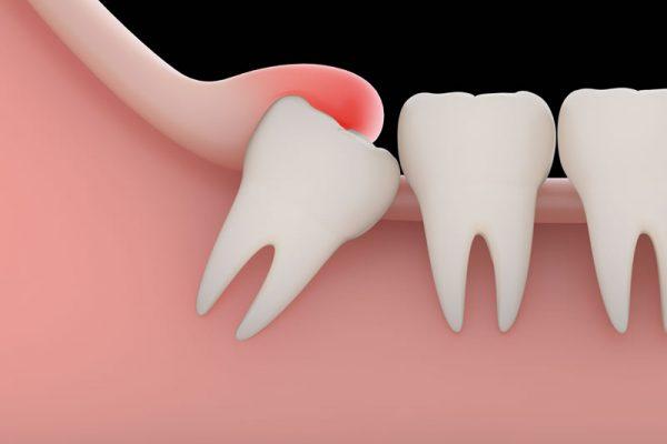 general-dentistry-wisdom-teeth