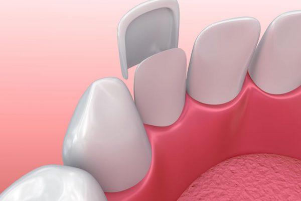 comestic-dentistry-porcelain-veneers