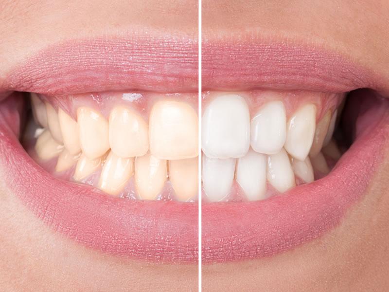 comestic-dentistry-teeth-whitening