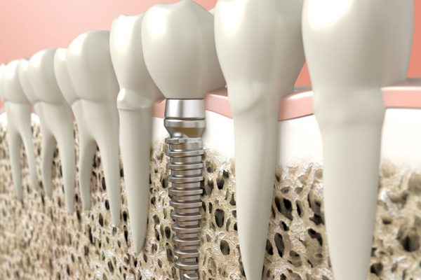 general-dentistry-implants